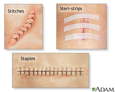 Sling Procedure  recovery test tube pain